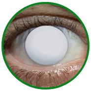 özel tasarım efekt lensi