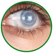 Özel yapım iris prostetik lens